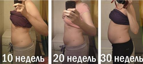 Фото живота на 10 неделе беременности